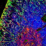 Generan por primera vez una leucemia linfoblástica aguda T humana in vivo